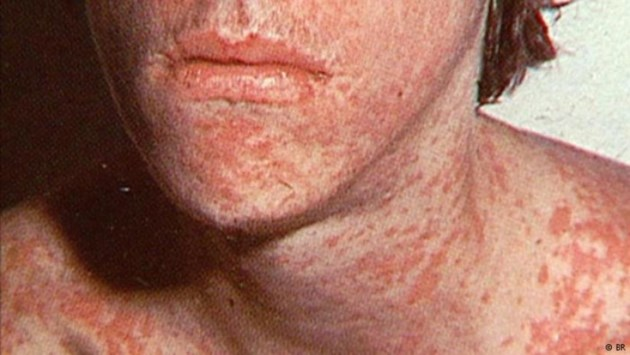 New measles case confirmed on Vancouver Island