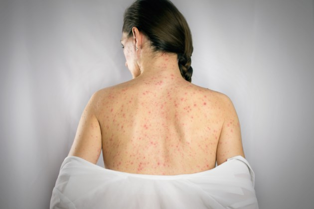 measles AdobeStock_198035519
