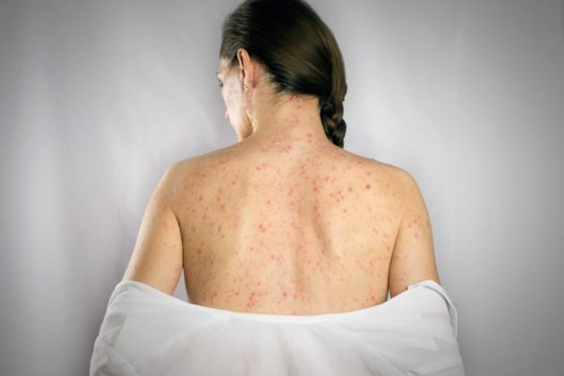 measles AdobeStock_198035519