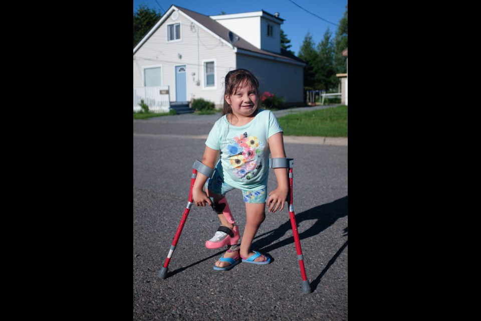 Ciara Pelletier-Lebouef, 7, was born with both Pierre Robin Sequence and the rare birth condition Focal femoral hypoplasia. Photo by Jeff Klassen for SooToday