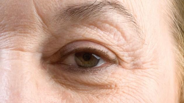 190814_wrinkles