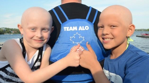 300615_AP_alopecia660